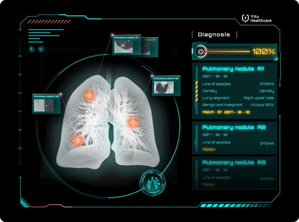 care.aiTM胸部CT智能四维影像系统